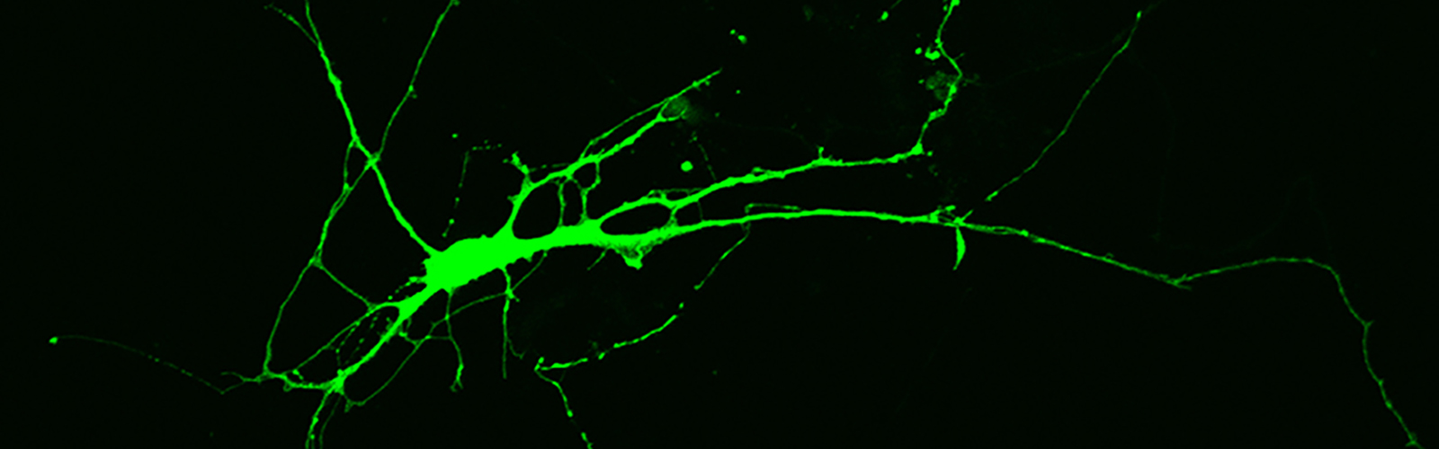 Fluorescence microscopy image of a nerve cell derived from induced pluripotent stem cells donated by an individual with Rett syndrome.
